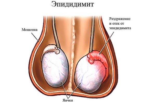 Воспалительный процесс в яичке