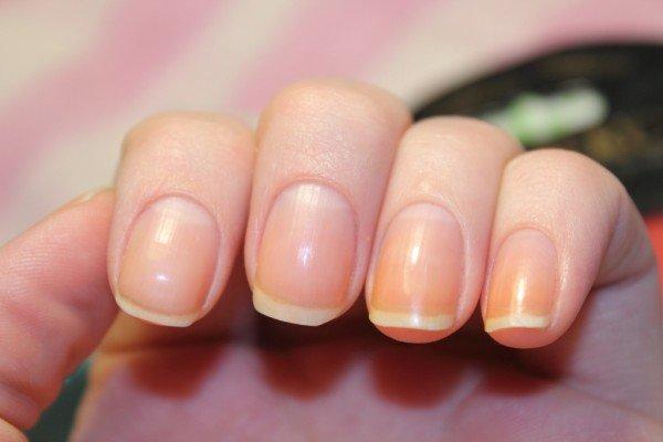 Пожелтение ногтей