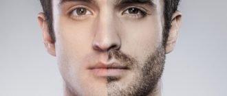 Улучшение роста бороды