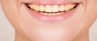 Желтые зубы